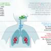 Aerosol Nebulizzatore a pistone per aerosolterapia con doccia nasale